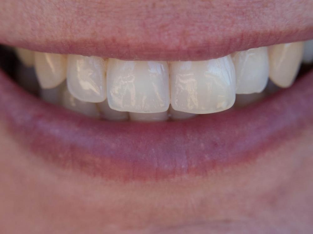 Dirk_Kohle_Dir_zeig_ich_die_Zähne